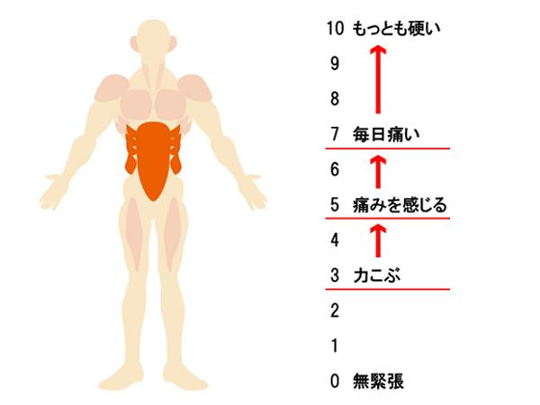 筋肉の緊張のレベル