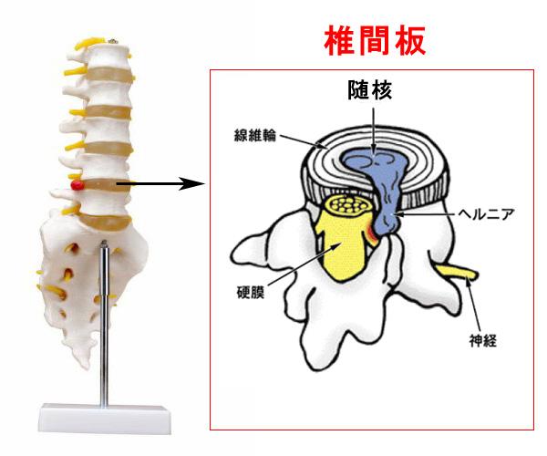 ぎっくり腰(椎間板ヘルニア)の症状