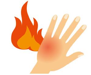 火傷のイラスト