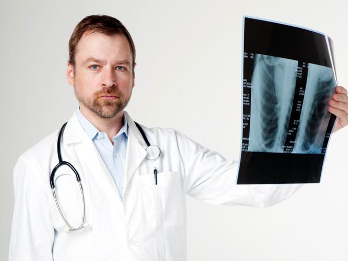 レントゲン画像を持つ医者